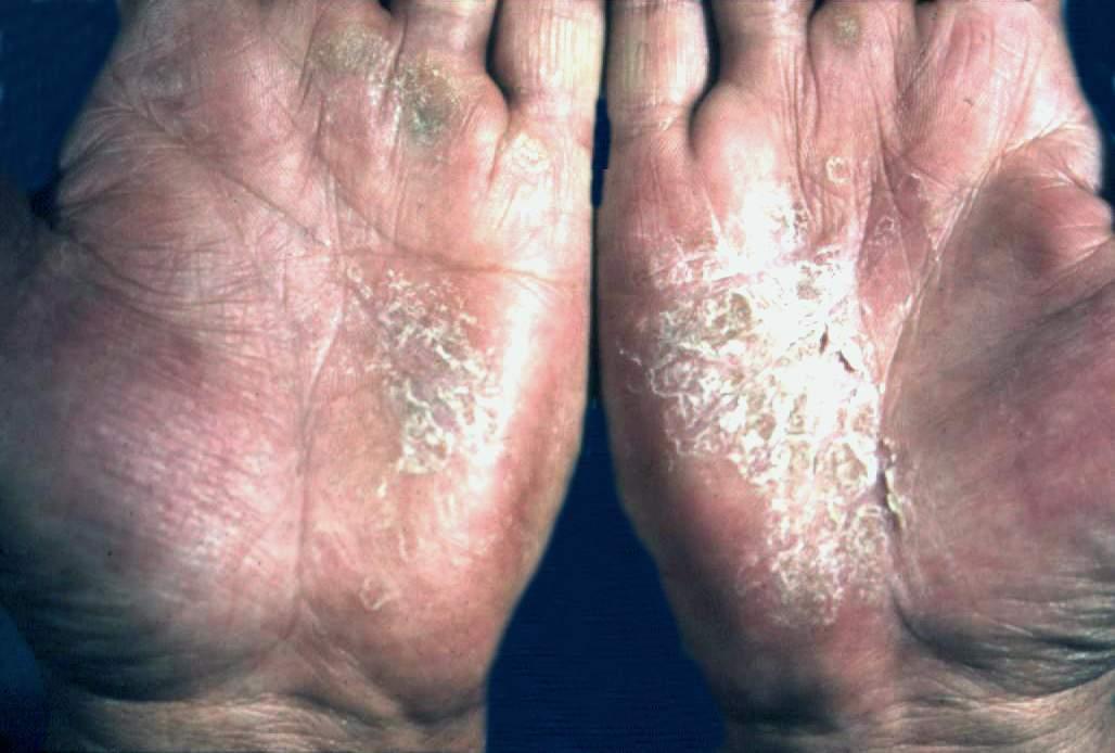 手部湿疹症状图片2