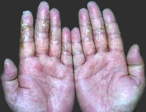 手部湿疹症状图片3