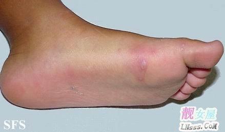 手足口病症状图片2